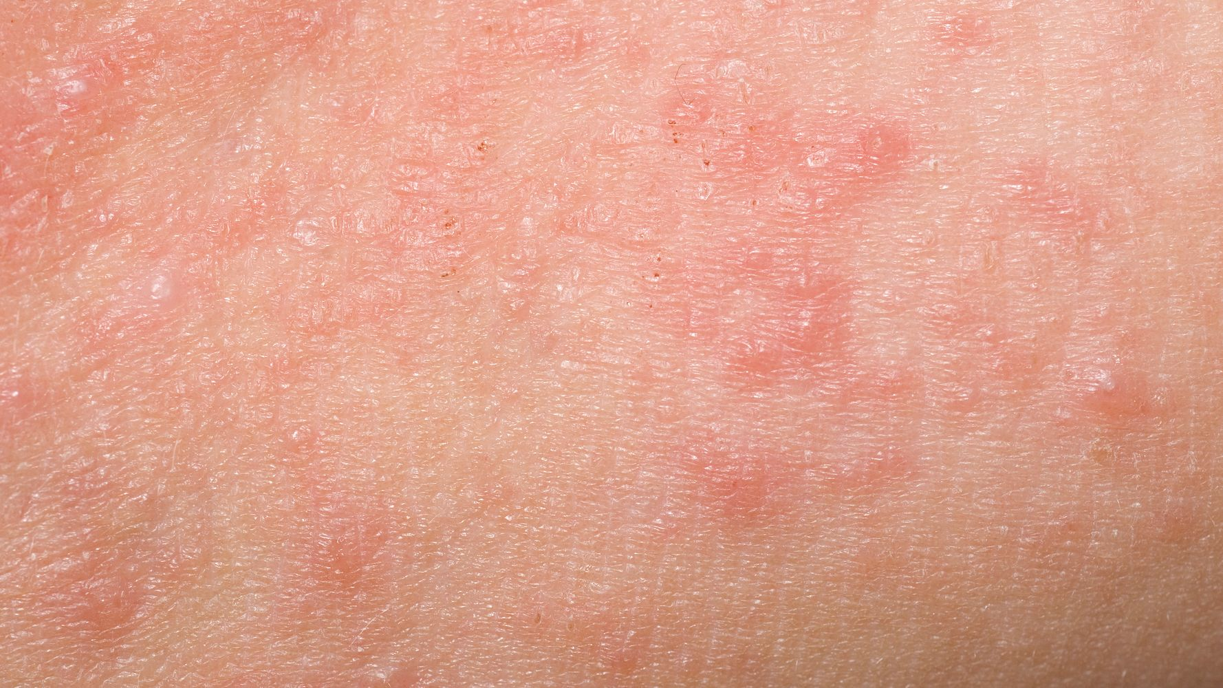 What Is Keratosis Pilaris, And Why Does It Look Like Body