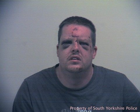 Johnathon Holmes, 35, peers out of two swollen eyes after being pummeled by a woman while attempting to rapeher.