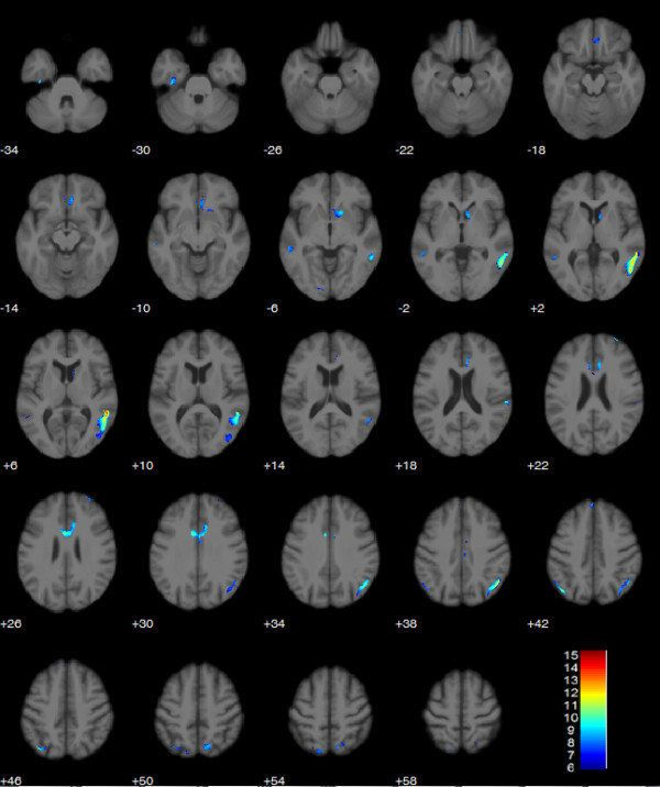 """A <a href=""""http://www.ncbi.nlm.nih.gov/pmc/articles/PMC3896776/"""">3D rendering of the surface projection of the runner's brain"""