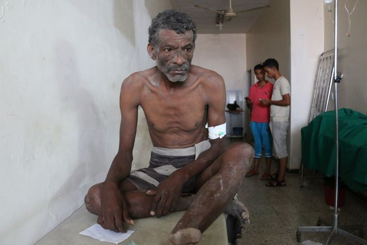 An estimated 23 percent of health facilities have closed in Yemen since airstrikes began in March.