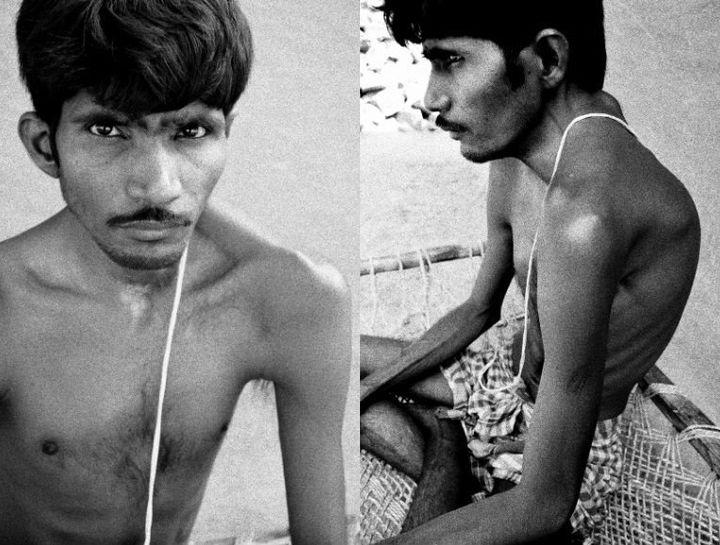 Sameer Acharya, son of a former UCIL employee, has had a congenital deformity since birth.