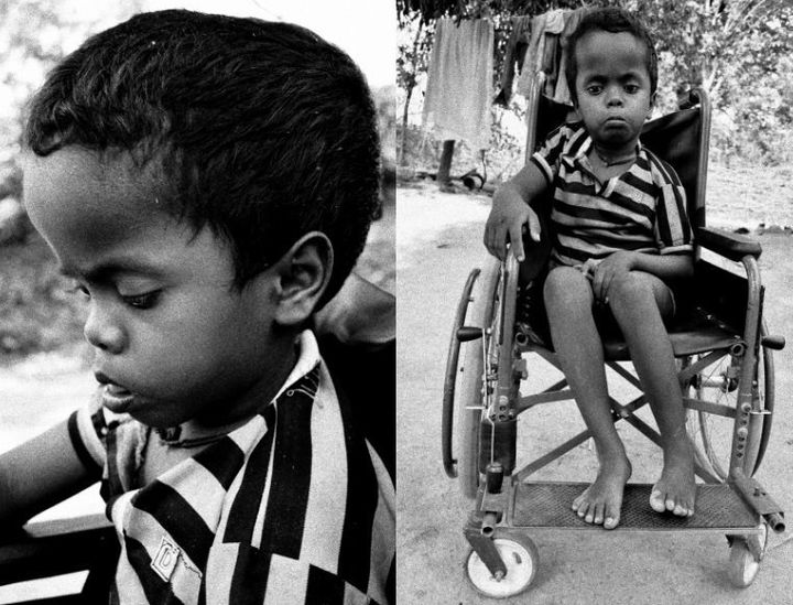 Achai Baskey, from Rajdoha village, was born with megacephaly, which isthe condition of having an unusually large head