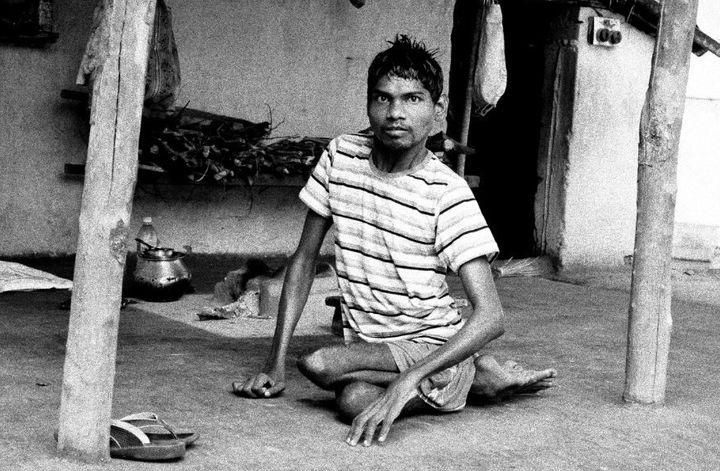 Duniya Oraon, who lives in Jadugoda,has mental and physical disabilities.