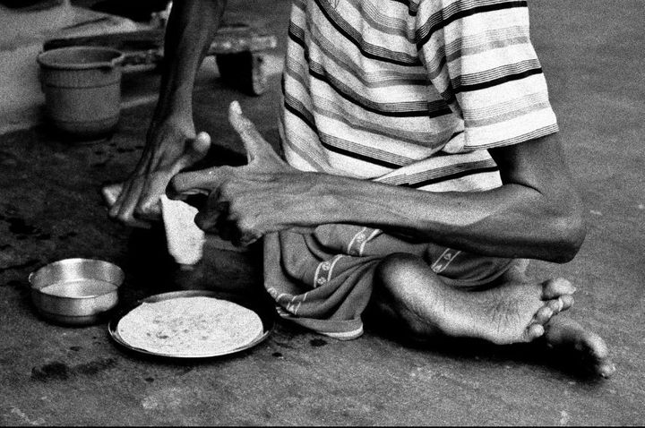 Duniya Oraon, a Jadugoda native, struggles with defects with which he was born.