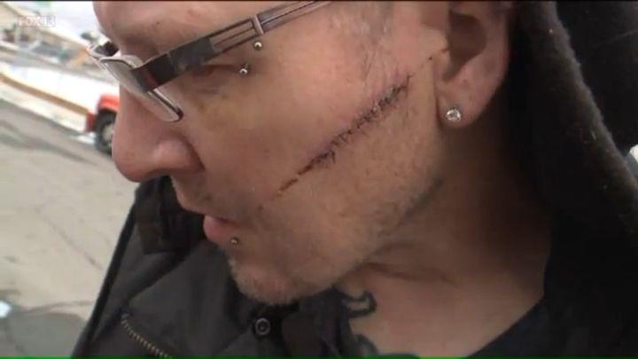 Jason Harper shows a scar across his left cheek from the machete attack in Orem, Utah.
