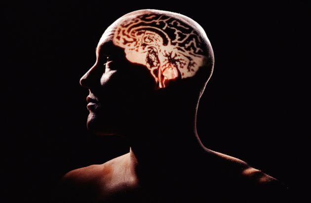 Landmark Study Identifies Key Brain Difference In