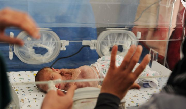 DARKOUSH, SYRIA - APRIL 22 (SOUTH AFRICA OUT): Baby Mohammed Al Khalaf at the Gift of the Givers hospital on April 22, 2013,