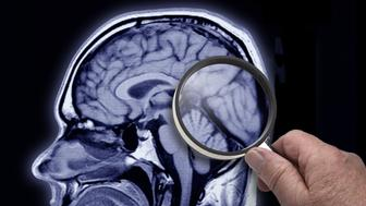 MRI image of brain showing area of Alzheimer patient.