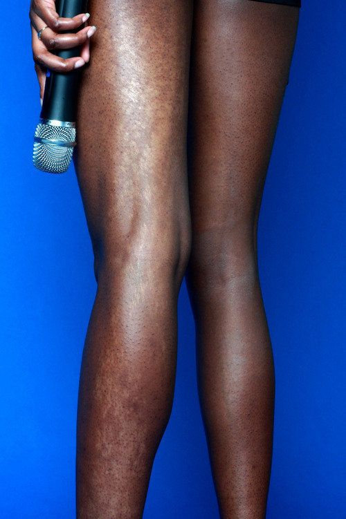"""The essence I embrace is my birthmark. It covers my entire left leg."" -- Opeyemi<br>"