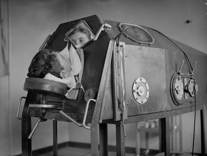 A patient lying in an artificial respiration machine called an iron lung, circa 1938.