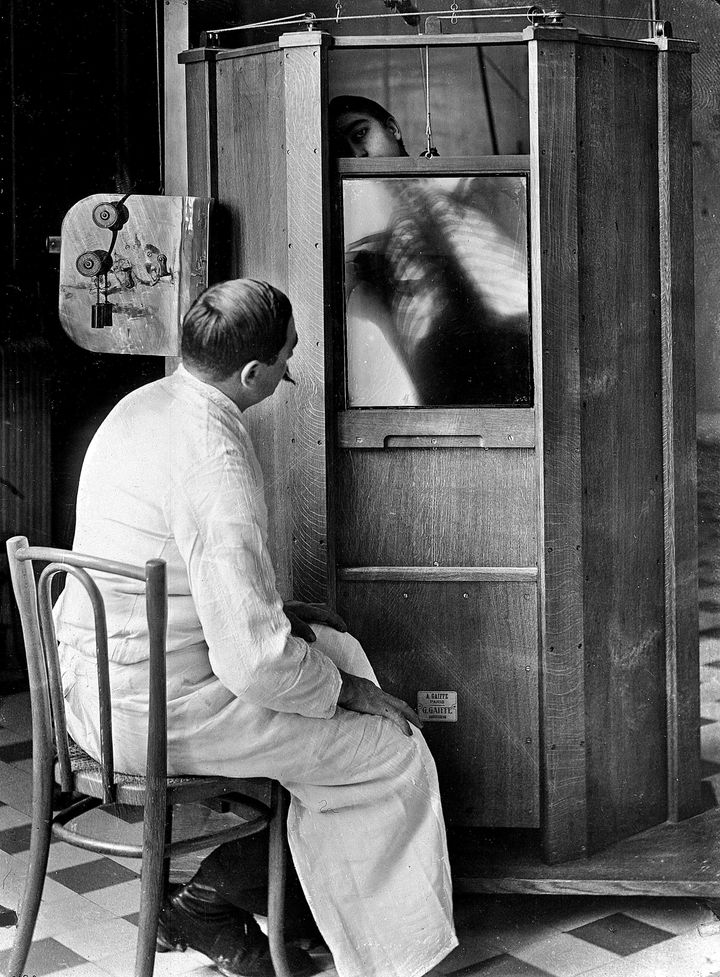 A chest X-ray in progress at Dr. Maxime Menard's radiology department at the Cochin hospital in Paris, circa 1914. Mendard would later lose his finger to side effects from operating the X-ray machine.