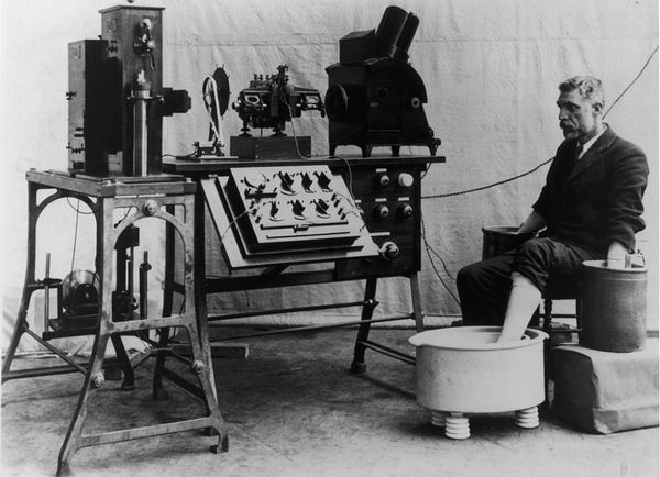 A man connected to an early electrocardiogram machine invented by the Dutch physiologist William Einthoven, circa 1912.