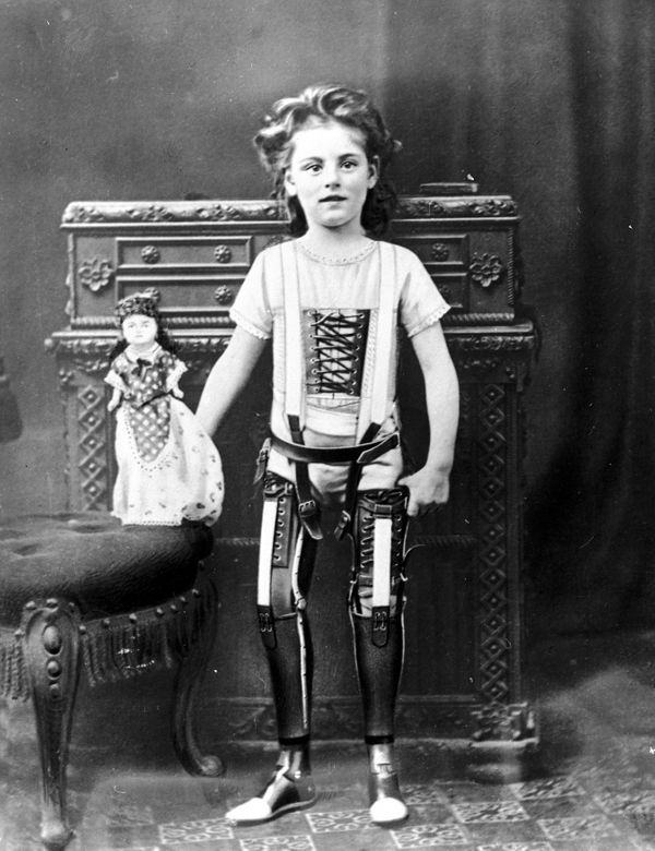 Studio photograph of a young girl wearing a pair of artificial legs, in England 1890-1910. The legs were manufactured by Jame
