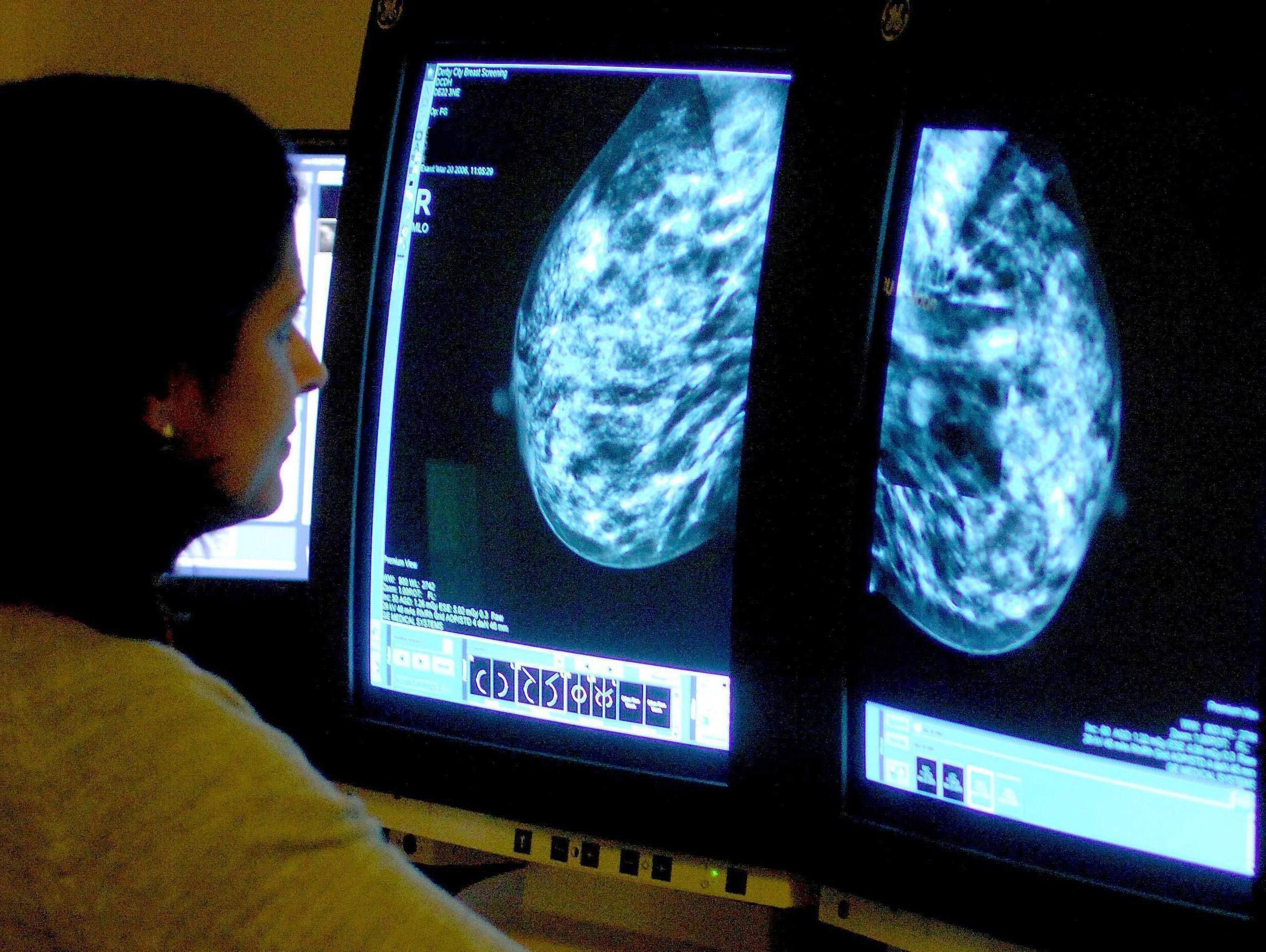 Embargoed to 2330 Wednesday January 6File photo dated 15/06/06 of a consultant analyzing a mammogram. Cancer screening has never been shown to save lives in the way that is often claimed, experts have argued.