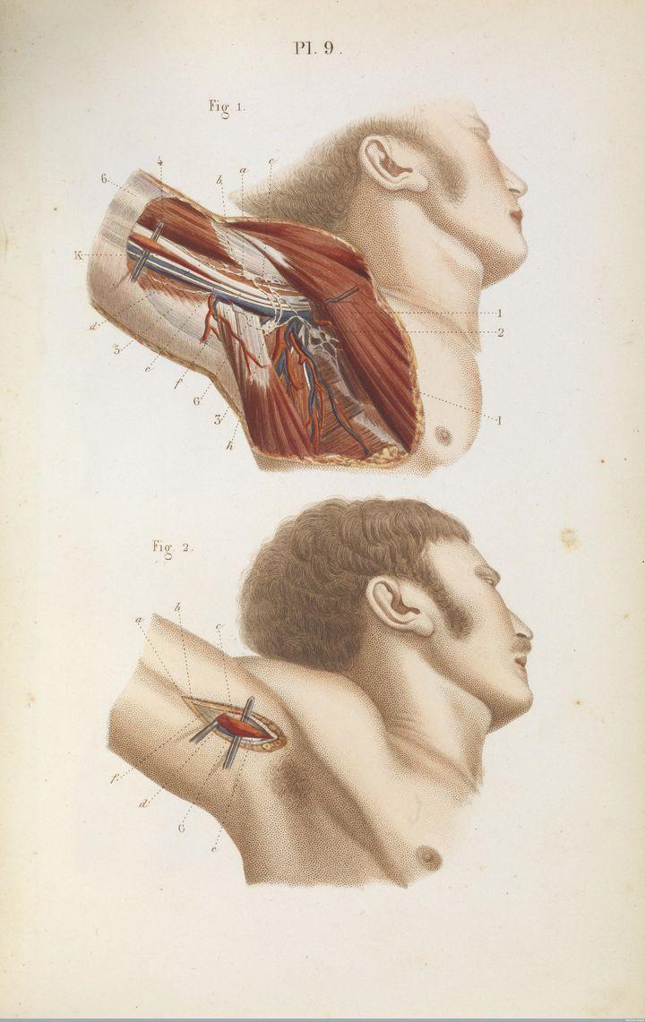 Tying up the armpit'saxillary artery, 1848.