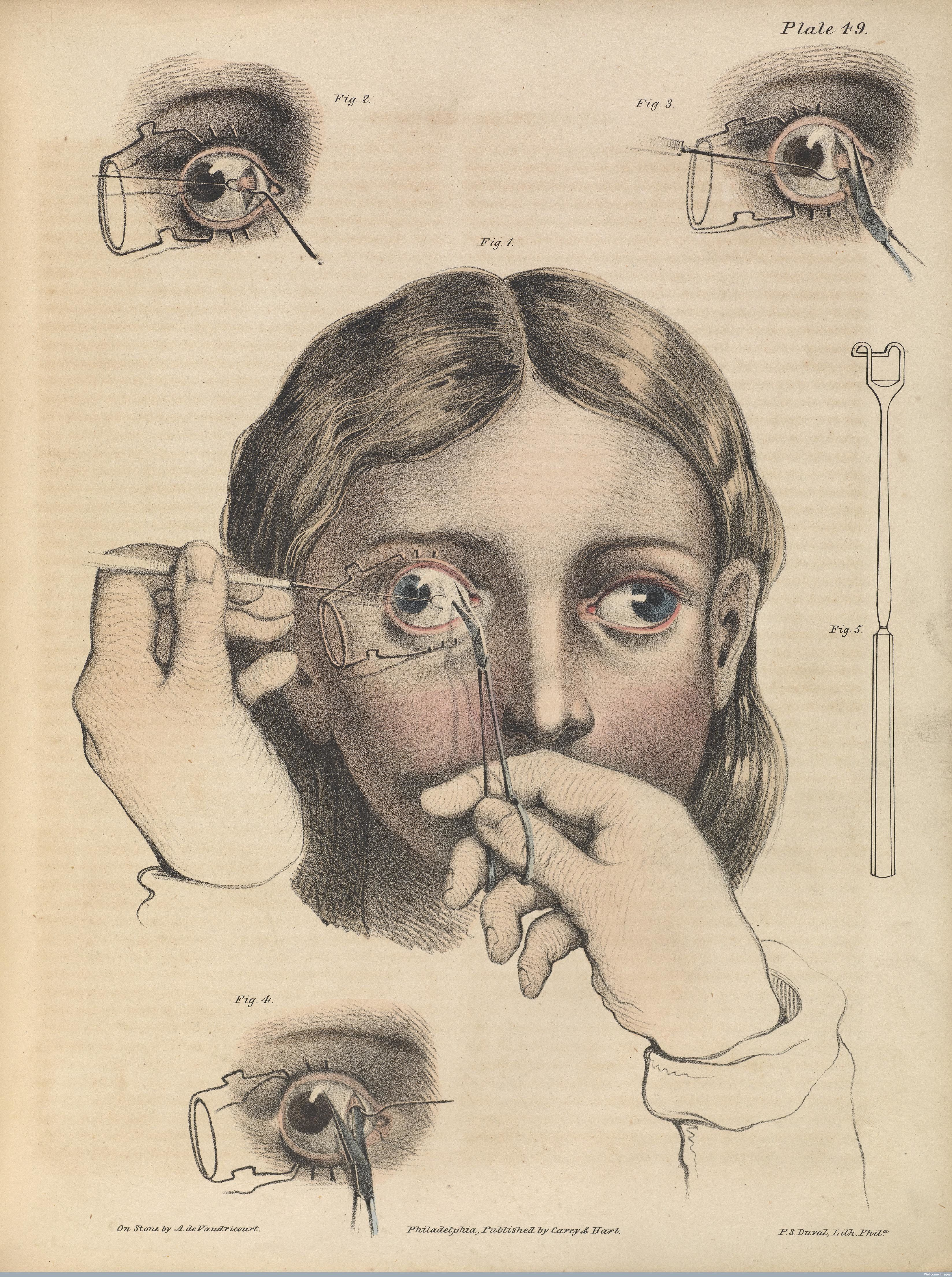 Eye surgery to correct strabismus, a misalignment of the eyes, 1846.