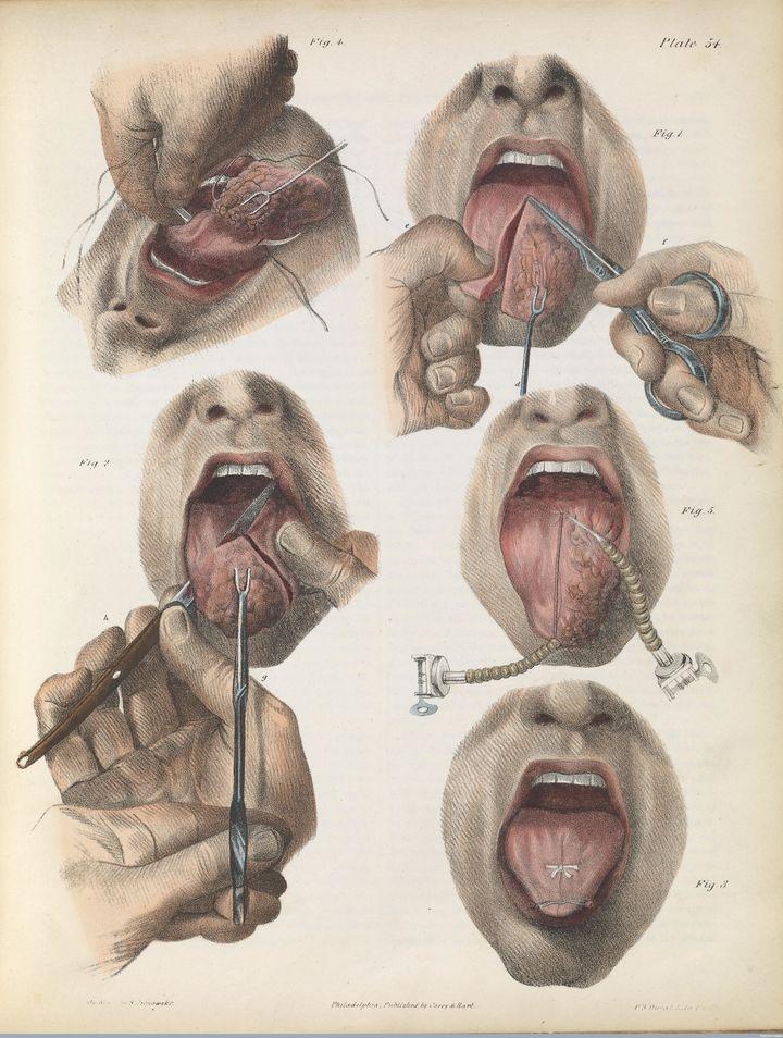 Tongue cancer surgery, 1846.