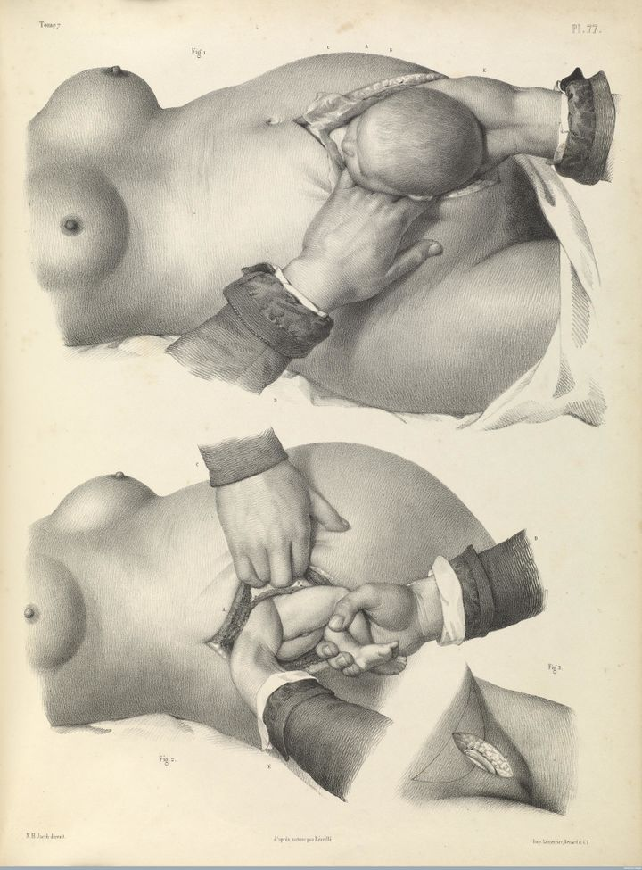 Childbirth by caesarean section,1840 lithograph.