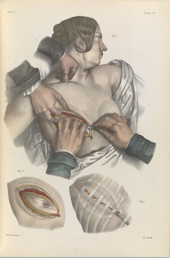 Surgery to remove the breast and dress the wound, 1841.