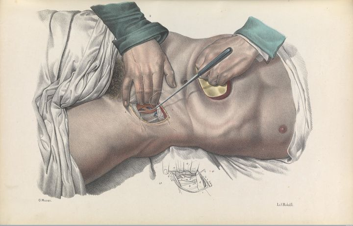 Sewing up an artery in the groin region using sutures and a suture hook, while compressing the abdomen to reduce aortic blood flow, 1841 lithograph.