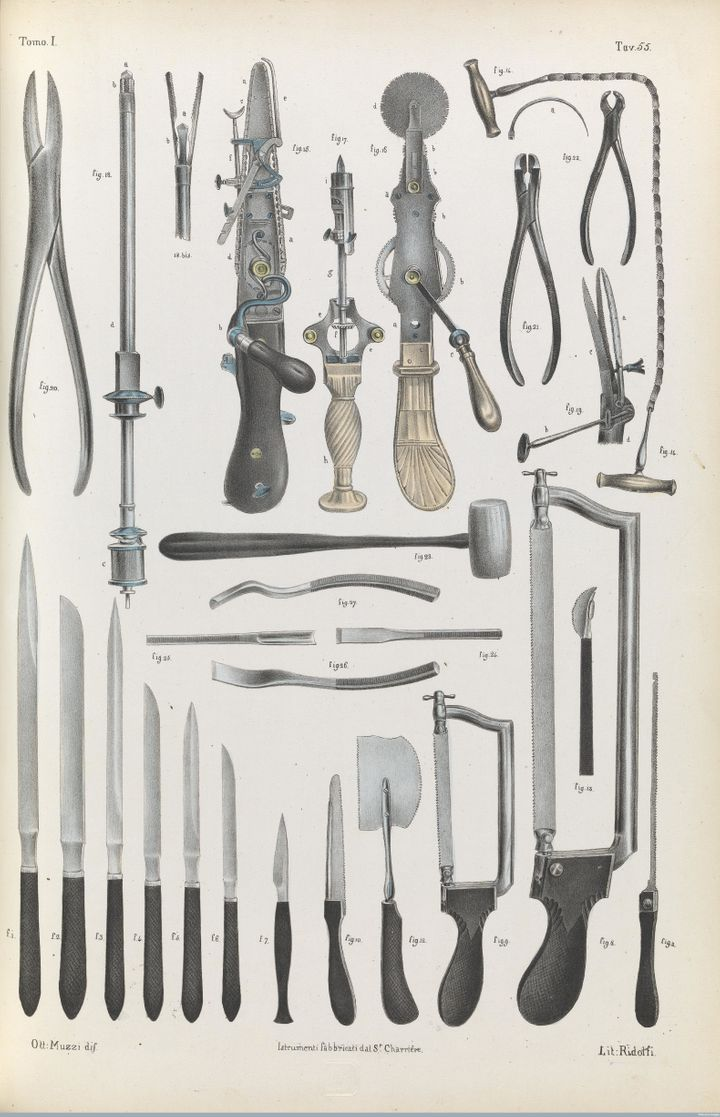 Surgical instruments used for amputation, bone and organ operations, 1841.