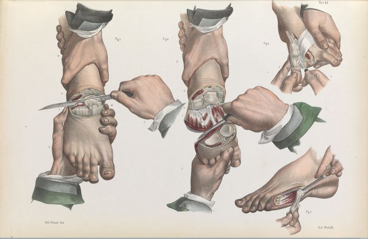 Amputations of the toes and foot, 1841.