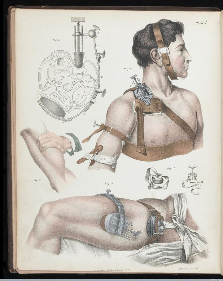 Illustration of operative surgery, 1846.