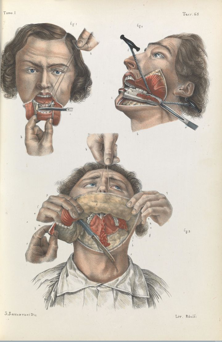 Removal of the lower jaw, 1841.