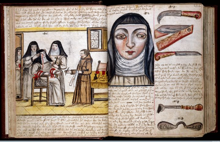 Treatment for lacrimal fistula (a small lesion near the eye), performed on a nun, circa 1675.