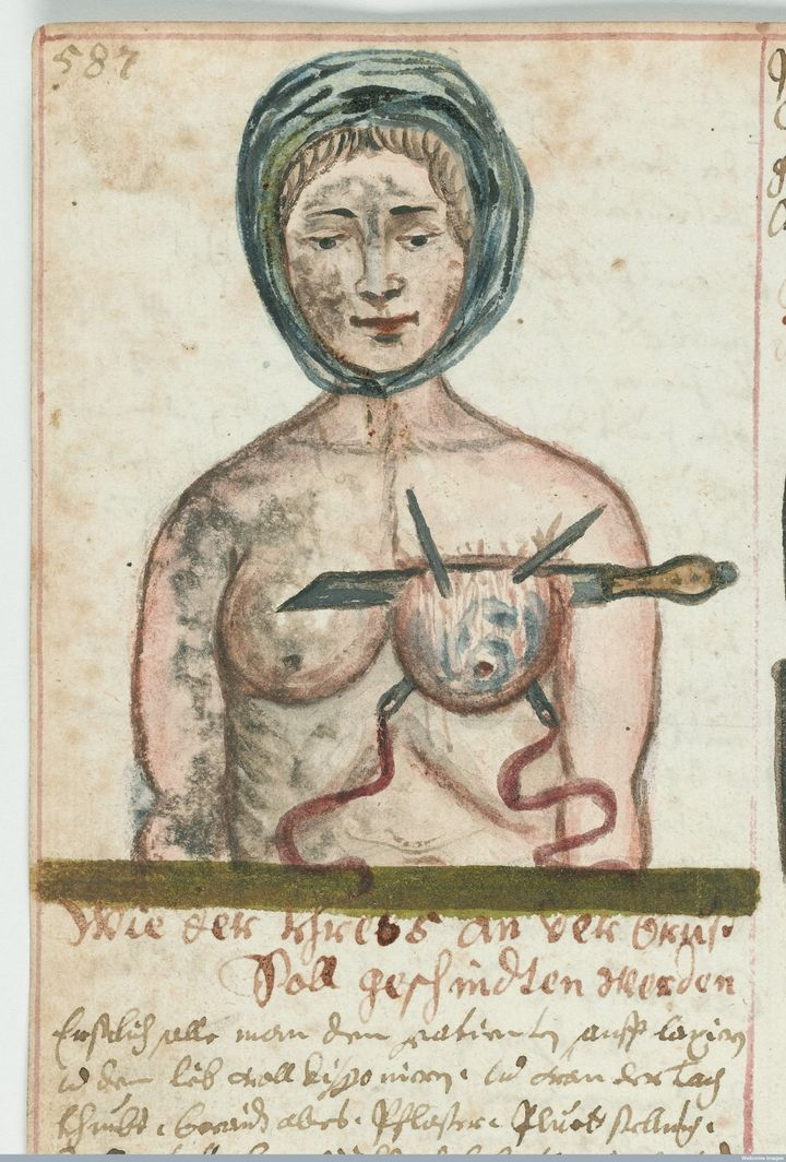Woman having a breast operation, circa 1675.