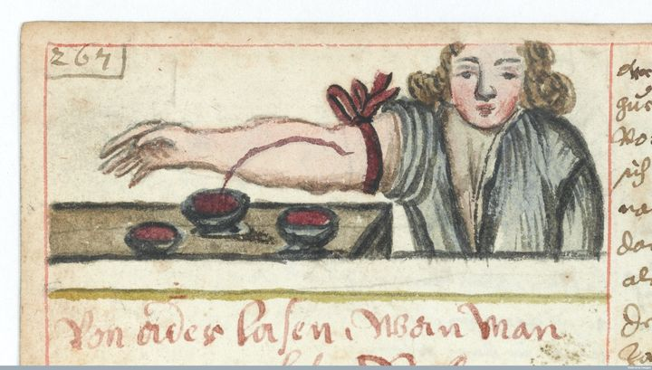 Bloodletting, or withdrawing blood to prevent illness or disease, circa 1675.