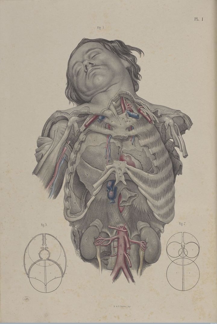 Dissecting the thorax to reveal the lungs, heart and primary blood vessels, 1856.