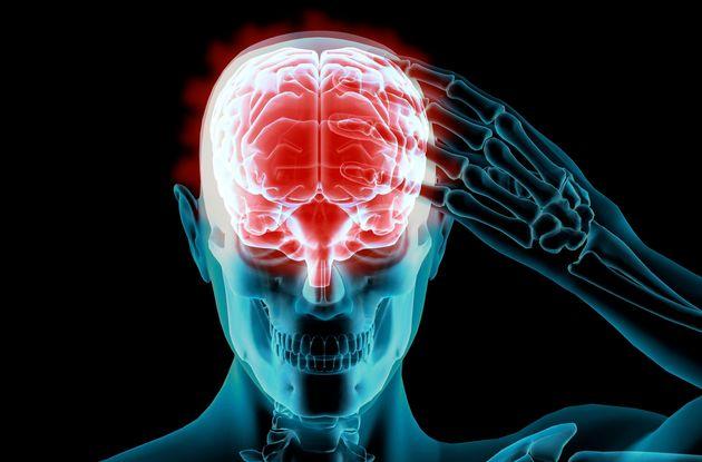 Halting Alzheimer's