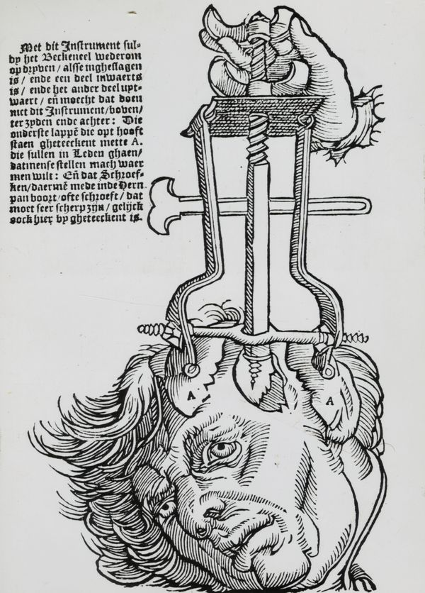 An illustration of the trephination elevator, which was used for removing fragments of broken skull, as seen in a book on fie