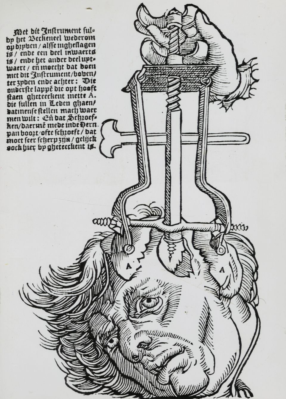 Trephination elevator for removing fragments of broken skull. Woodcut from a book on field surgery, 1593.