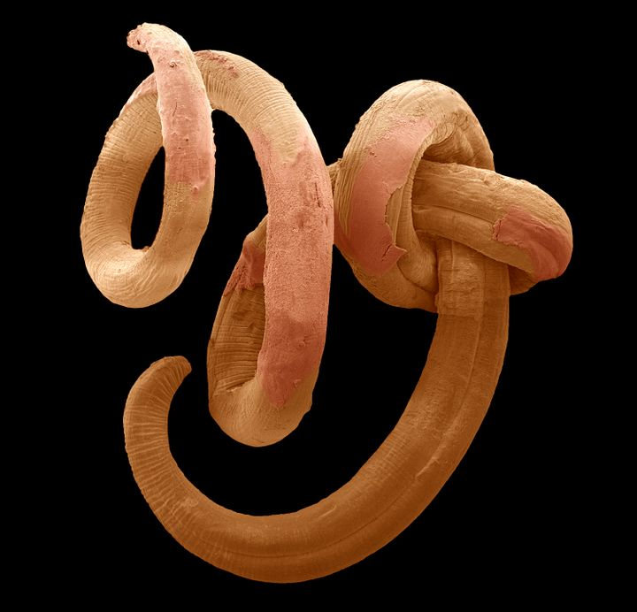 A nematode worm was revived after 39 years in deep freeze.