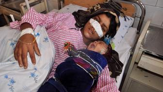 Afghan woman Reza Gul, 20, and whose nose was sliced off by her husband in an attack, lies on a bed with her baby as she receives treatment at a hospital in the northern province of Faryab on January 19, 2016. A photograph of an Afghan woman whose nose was sliced off by her husband in a fit of rage has sparked widespread revulsion, with activists demanding punishment for the 'barbaric act'. Reza Gul, 20, was rushed to hospital after the attack in Ghormach district in the northwestern province of Faryab on January 17. Her husband is said to have fled to a Taliban-controlled area. AFP PHOTO / Hasan Sirdash / AFP / HASAN SIRDASH        (Photo credit should read HASAN SIRDASH/AFP/Getty Images)