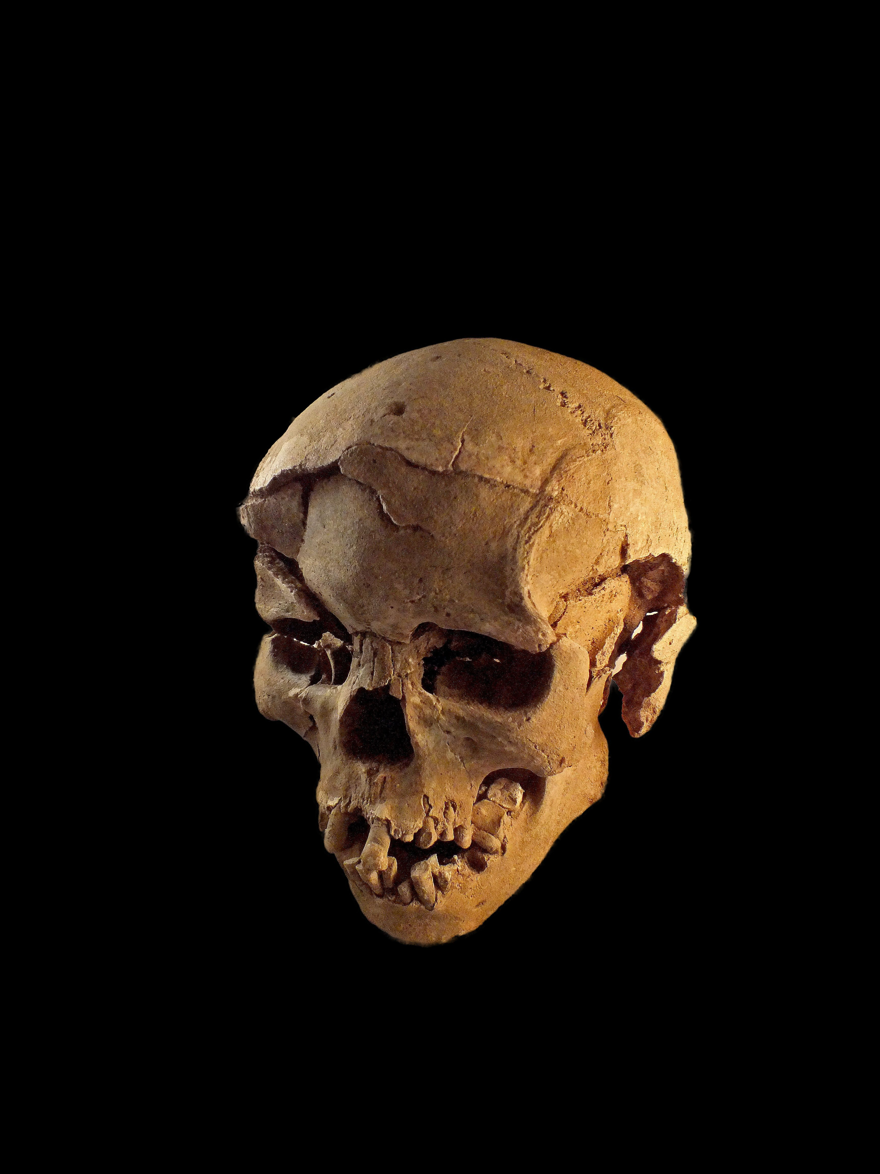 A skull with multiple fracture wounds, likely made by a blunt instrument such as a club.