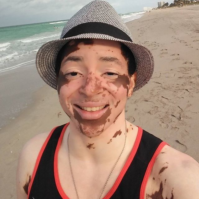 <i>Living with vitiligo has taught me that beauty starts from within and that it's not just something that can be defined by