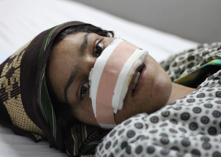 Reza Gul recovers from the most vicious of a series of attacks from her husband in her hospital bed in Mazar-e-Sharif on Wedn