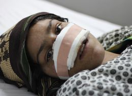 Meet The Afghan Woman Who Refuses To Stay Silent After Her Husband Cut Off Her Nose