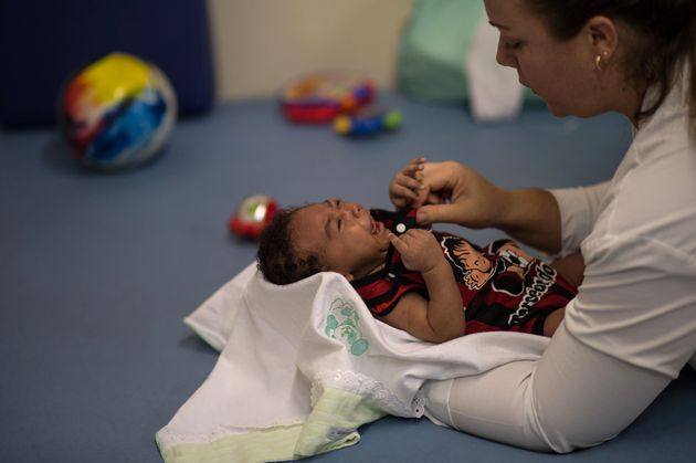 Physical therapist Isana Santana treats Icaro Luis, 2 months, who was born with microcephaly. This...