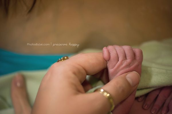 """This is a rare occurrence -- a baby born with six fingers! Definitely a surprise to mama and the birth team, but a special o"