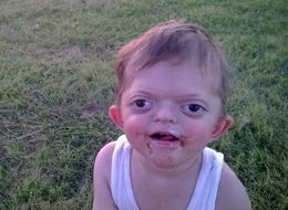 Mom Responds To Cruel Meme About Her Son With Craniofacial Disorder