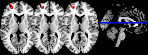Brain scans show increased functional connectivity in the brainafter a mindfulness meditation