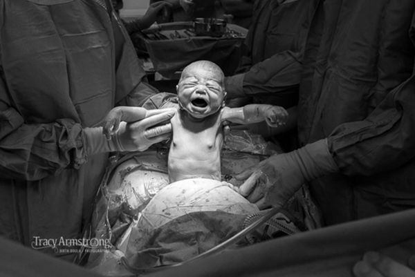 This striking C-section photo shows there's beauty in all forms of birth.
