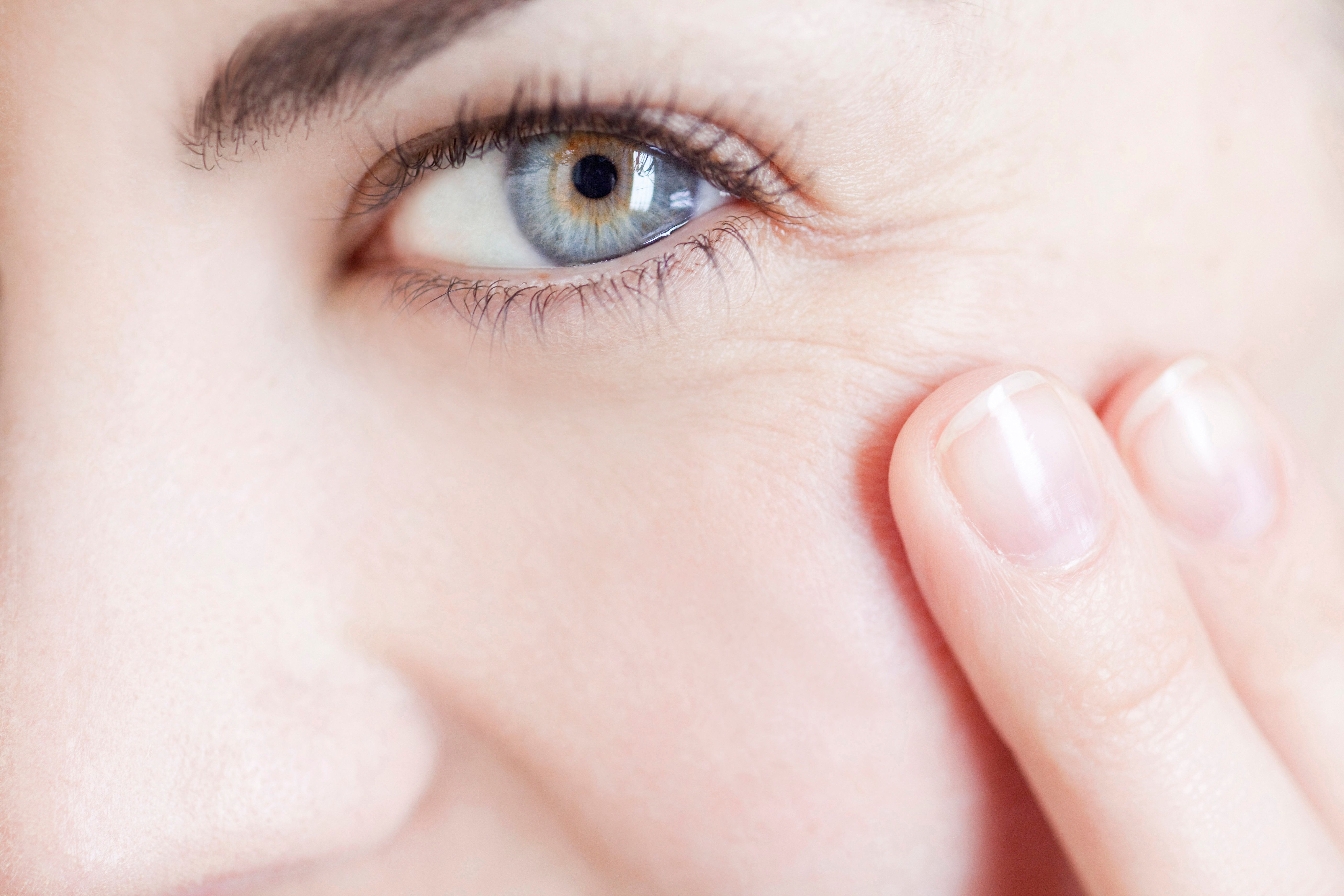 Retinol is often used to treat severe wrinkles and sun damage.