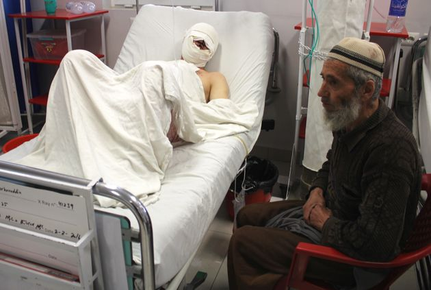 Burhanuddin, a 35-year-old farmer and father of four, lays in a bed at Kabul's Emergency Hospital after...