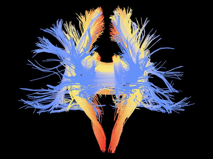 A colored 3D image shows neurons in the brain that could be important in social interactions, empathy and the evolution of la