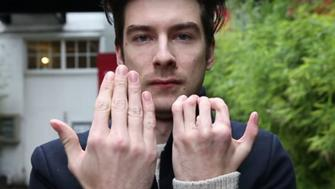 Richard Stott, 28, shows the results of a surgery that replaced two of his fingers on his left hand with his toes.